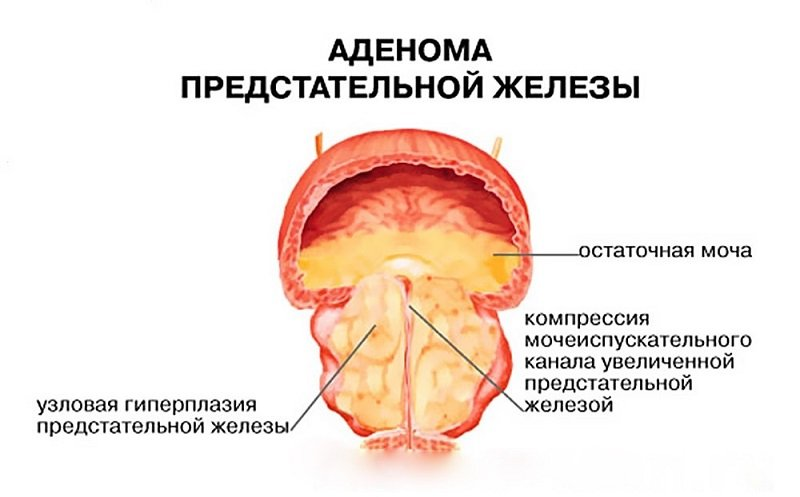 По характерным симптомам и переменам на экране УЗИ можно сделать логические выводы, что значит диффузные изменения предстательной железы.