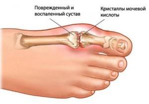Боль в стопе при наступании на ногу