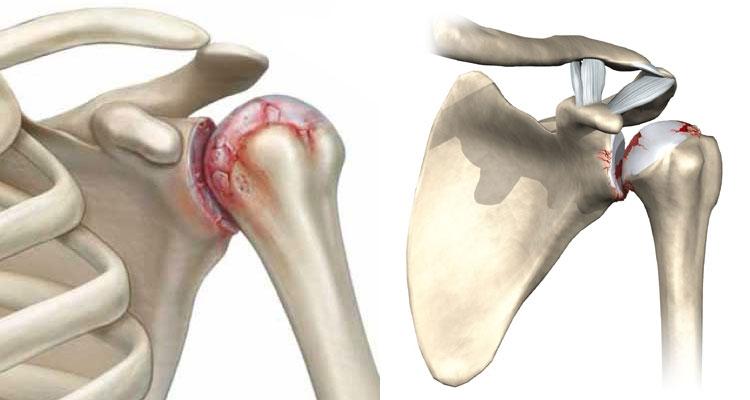 Посттравматический артроз плечевого сустава