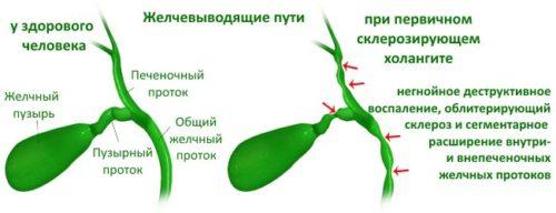 Что такое первичный склерозирующий холангит