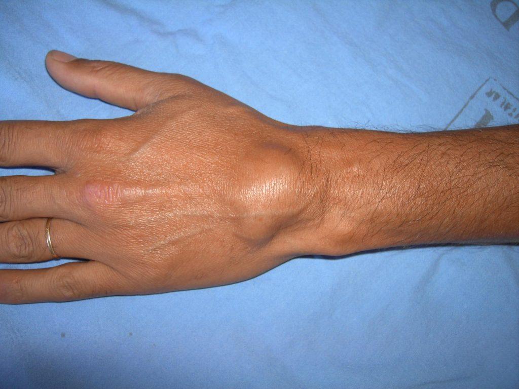 Виды шишек на руках