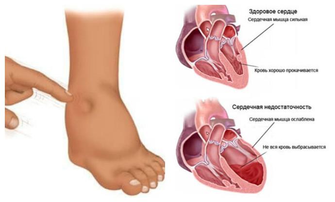 причины сердечных отеков ног