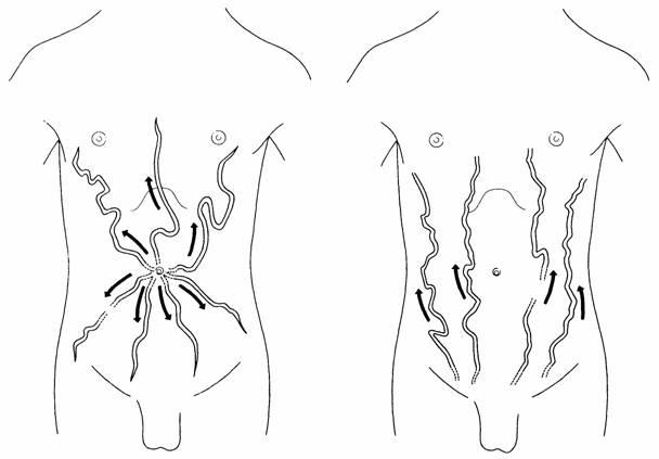 Симптомы последних стадий цирроза печени у мужчин