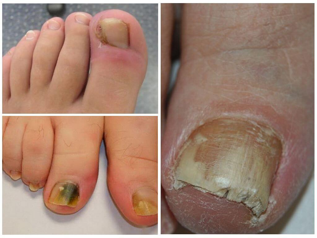 Основные симптомы грибка ногтей на ногах
