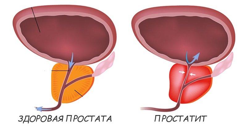 Лечение данным прибором позволяет максимально снизить риск возникновения обострения хронического простатита.