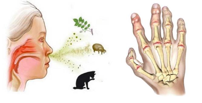 Аллергический артрит у взрослых фото