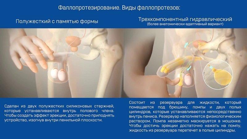 Имплантаты изготавливаются из разных материалов , но обязательно гипоаллергенных.