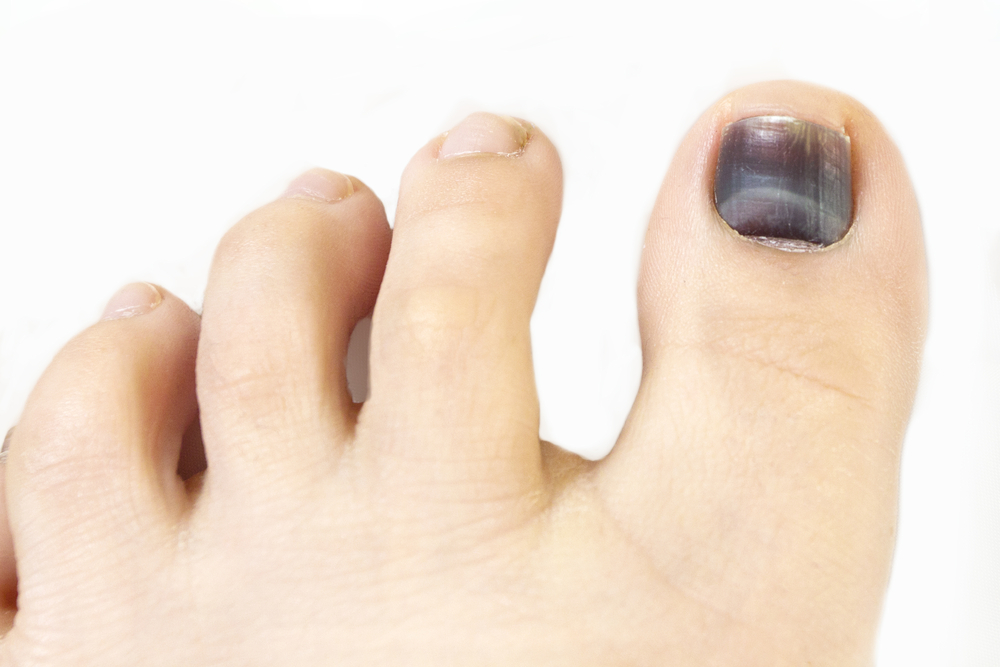 Причины темных ногтей при системных заболеваниях