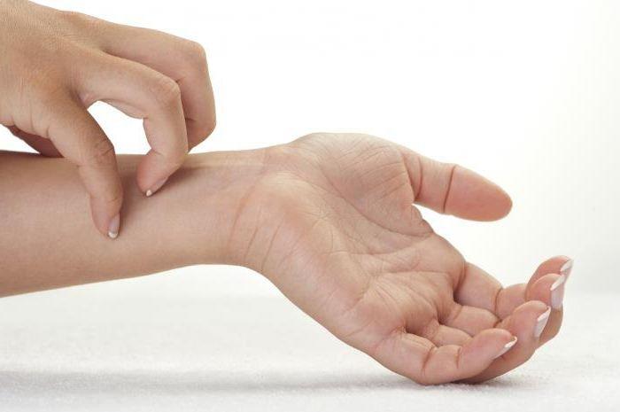 руки опухают и чешутся