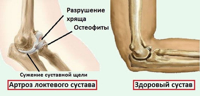 Посттравматический артроз локтевого сустава