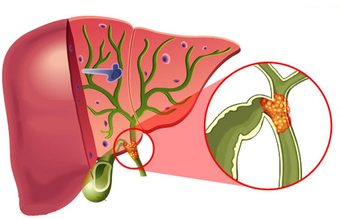 Признаки первичного склерозирующего холангита