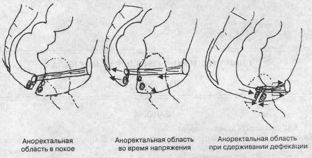 Проведение аноректальной манометрии