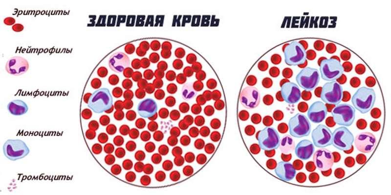 Цианокобаламин при хроническом лейкозе