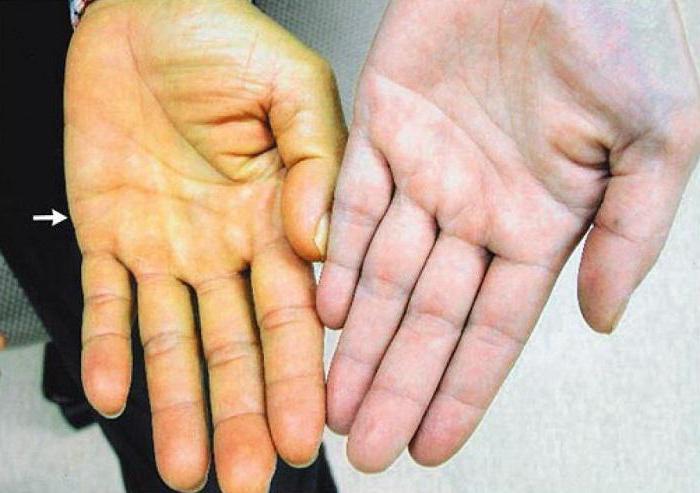 Причины появления Синдрома Жильбера