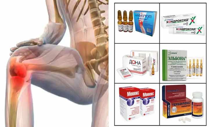 Деформирующий артроз суставов лечение
