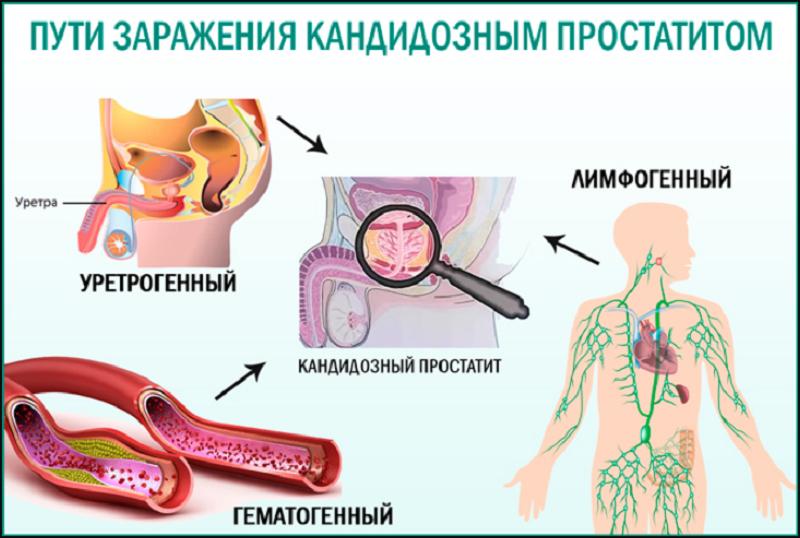 как можно заразиться простатитом
