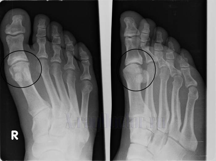 Остеосклероз суставов нижних конечностей