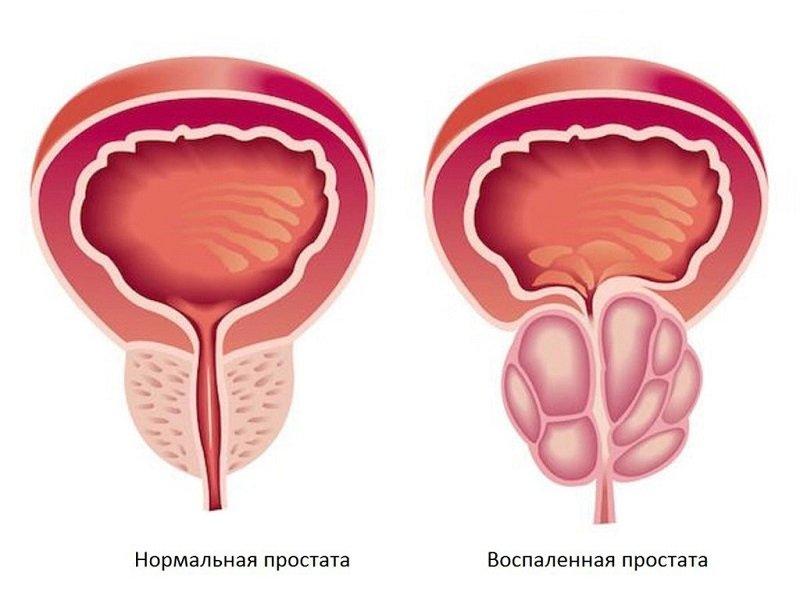 Отсутствие адекватного лечения может стать причиной формирования злокачественного новообразования.