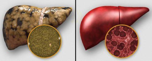 Как выглядит токсичная печень
