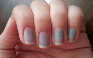 Посинение слизистых, губ и ногтей