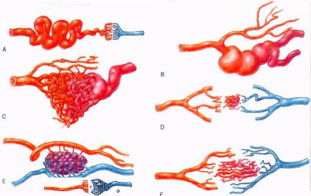 Причины гиперплазии печени