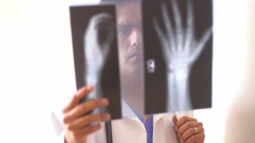Диагностика боли в руке