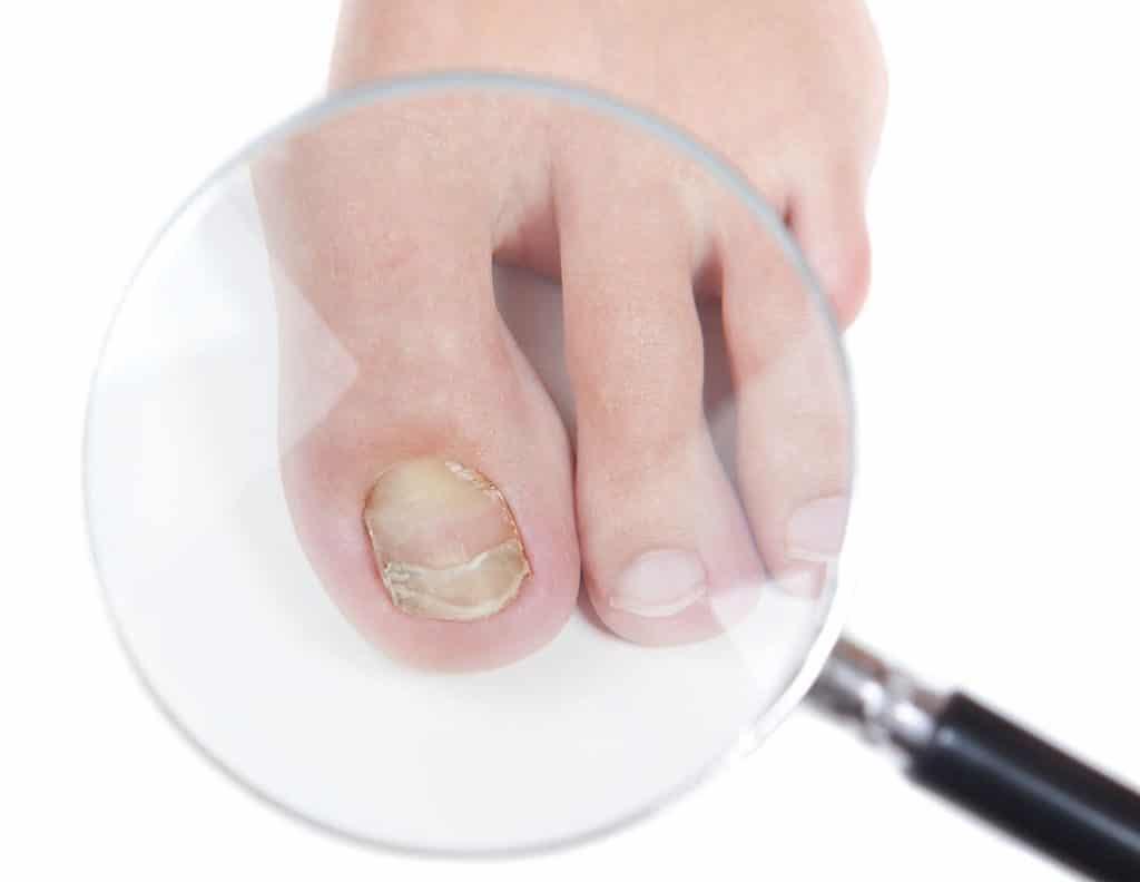 К восстановлению ногтей нужно приступать только после полного излечения