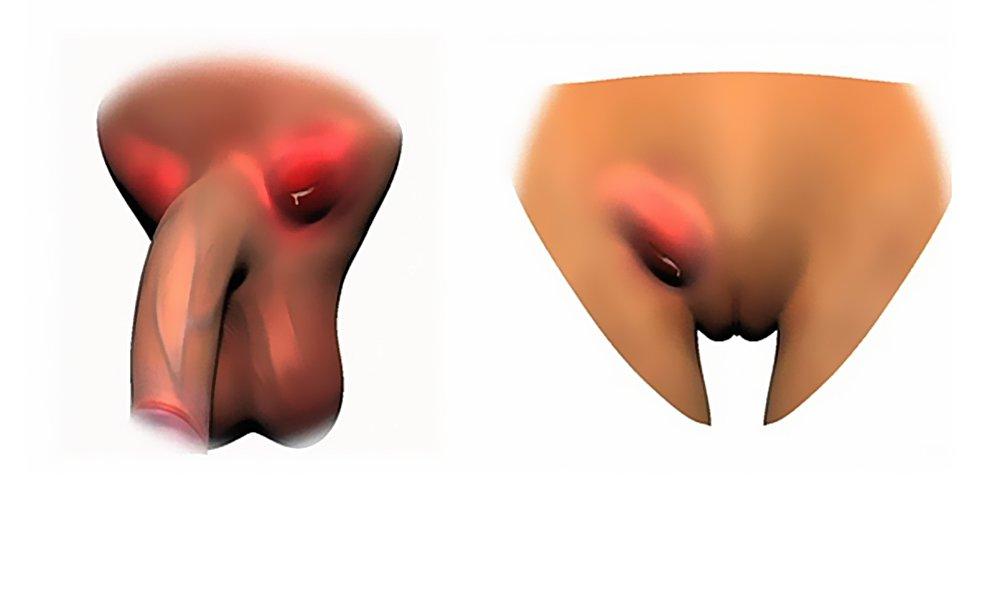 Основной признак – боли во время мочеиспускания