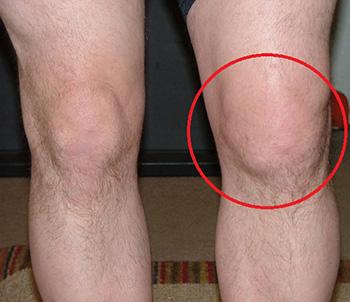 Инфекционный синовит коленного сустава симптомы
