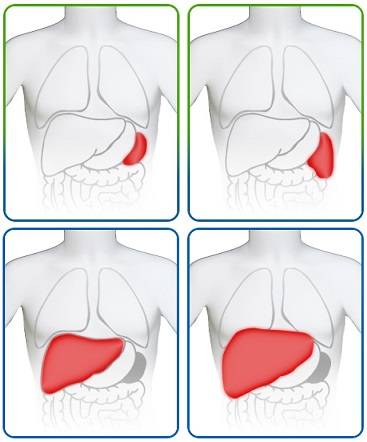 Диагностика гепатоспленомегалии