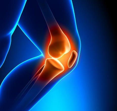 Артроз коленного сустава, лечение в домашних условиях