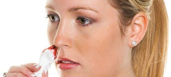 Насморк с кровью у взрослых: причины и симптоматика