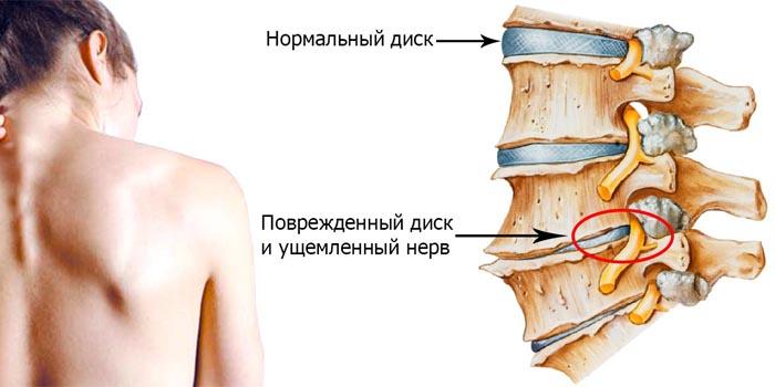 Медикаментозное лечение шейного остеохондроза