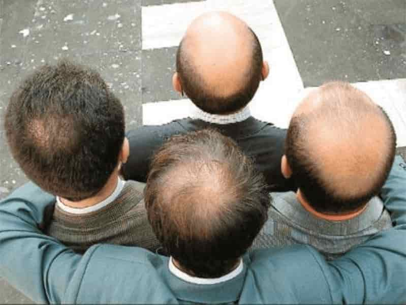 Одним из признаков недостаточного количества цинка в организме - выпадение волос