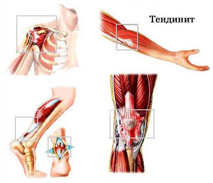 Воспаление коленного сустава при тендините