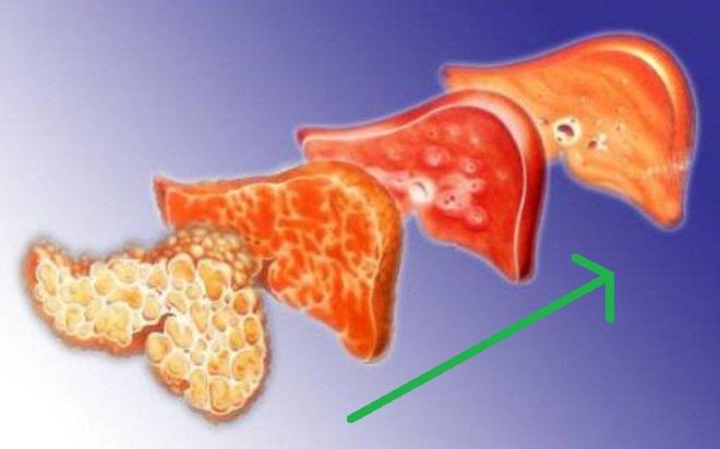 Лекарства для регенерации и активации печени после алкоголя