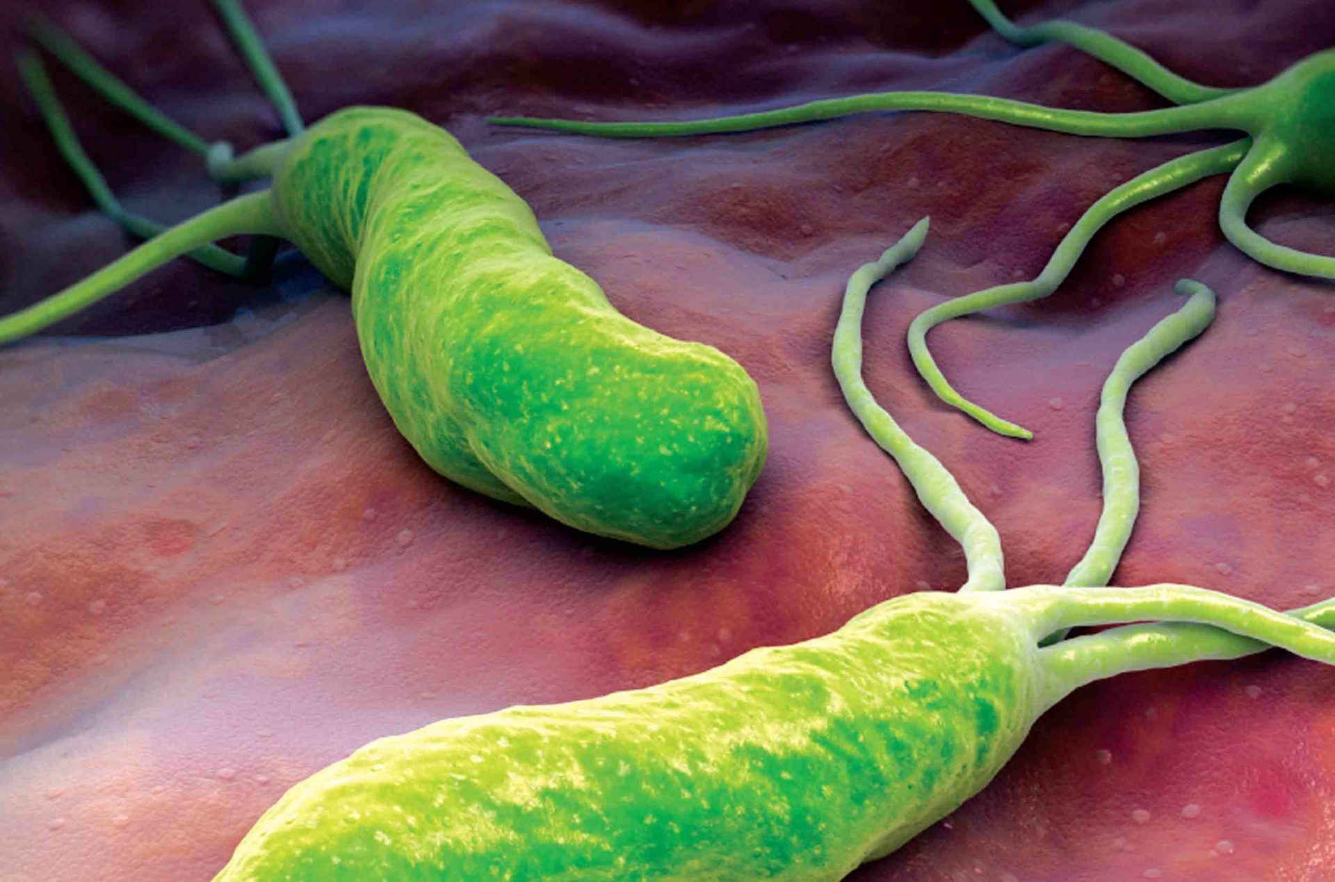 Какие инфекции лечит Тинидазол