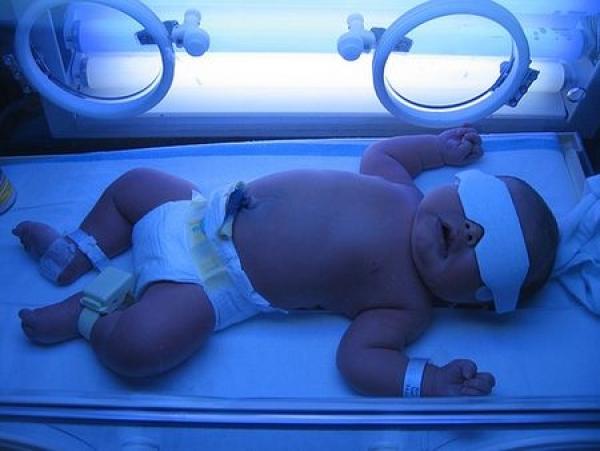 Лампа для новорожденных от желтушки
