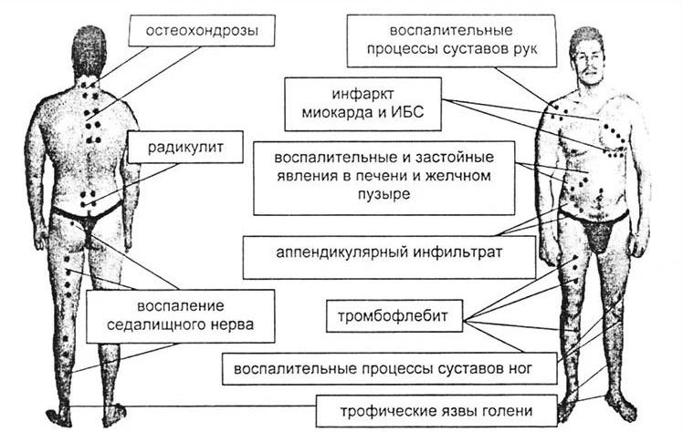 Апитерапия, схема с точками
