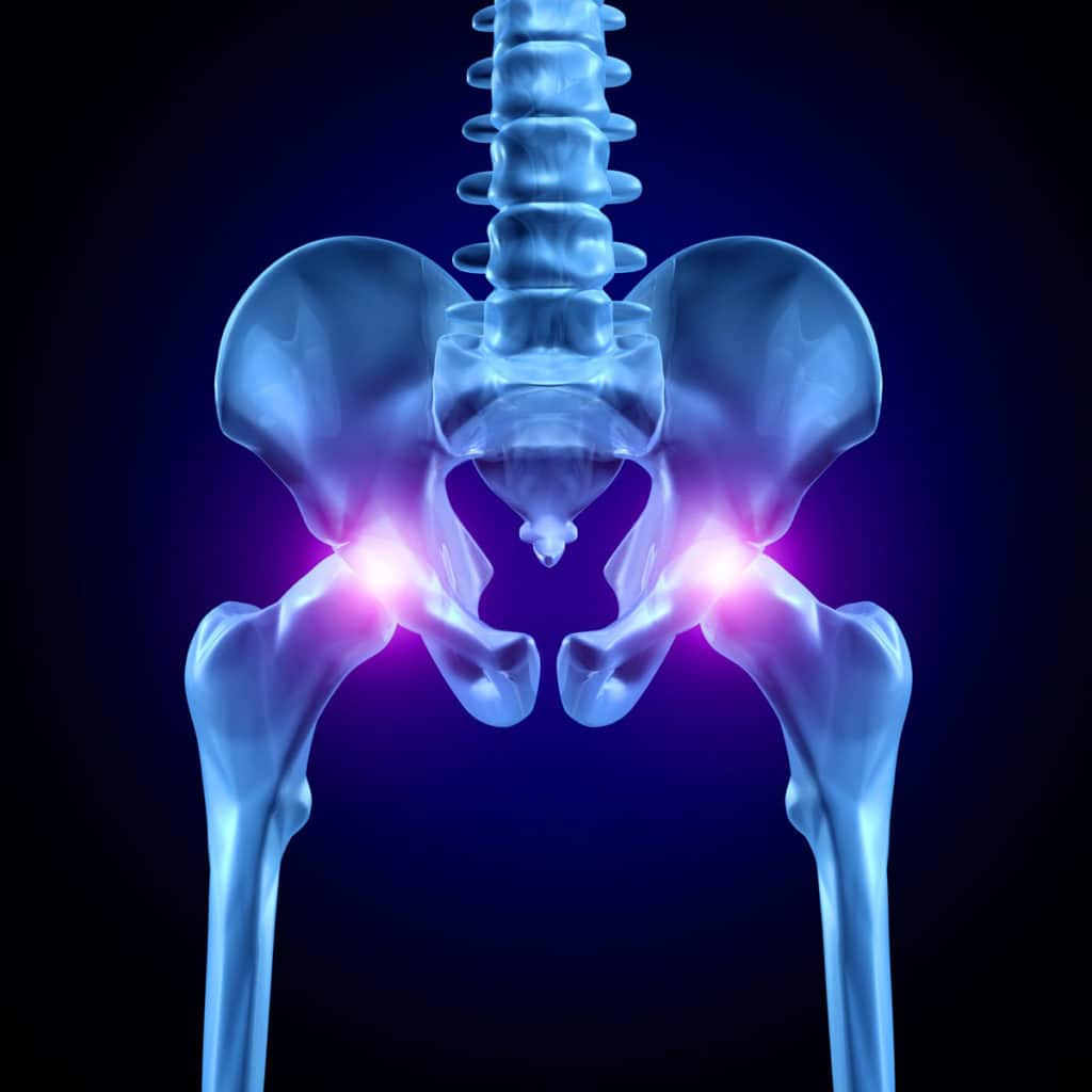 Артрозо артрит тазобедренного сустава код мкб 10