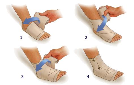 Растяжение связок голеностопа лечение
