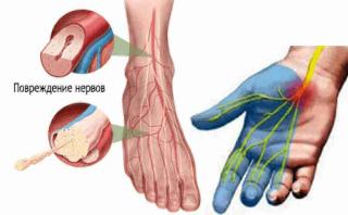 Отравление приводит к полинейропатии