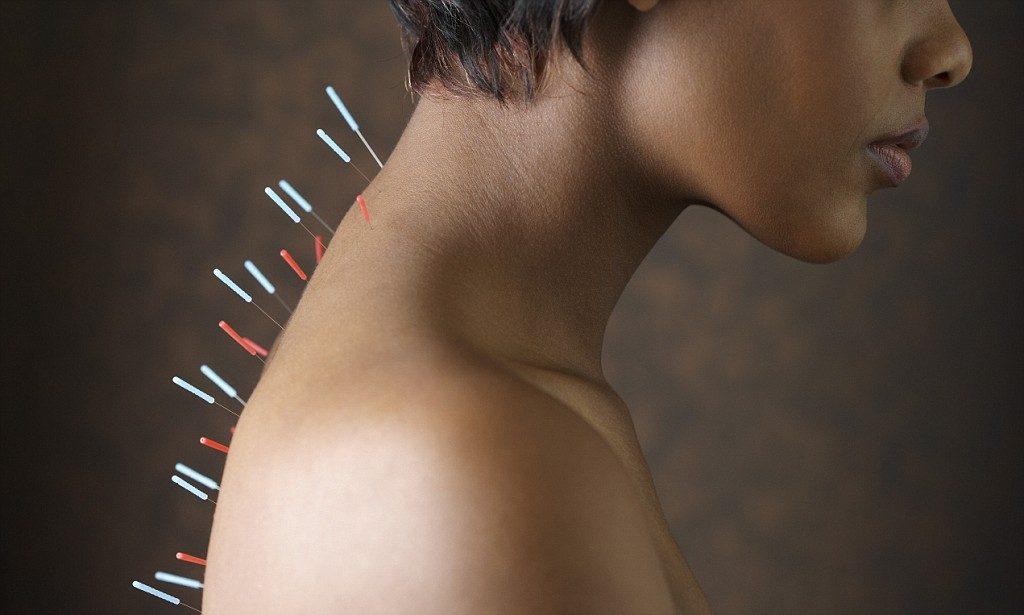 Иглотерапия при лечении артрита
