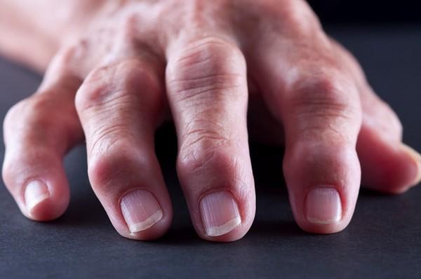Симптомы артроза пальцев рук