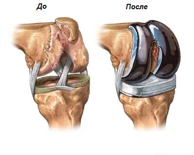 Отличия в лечении артрита и артроза