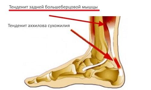 Тендинит сухожилия задней большеберцовой мышцы