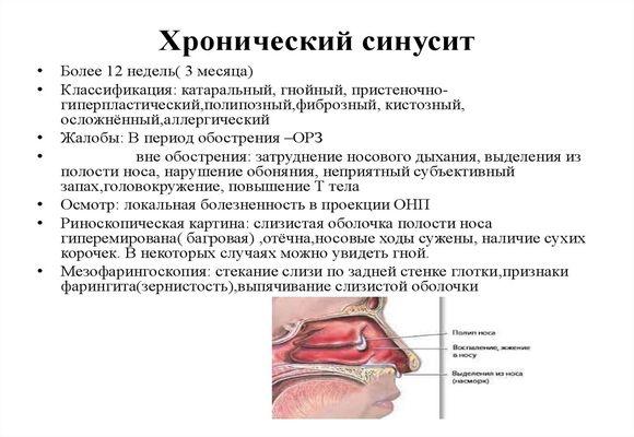 схема что такое хронический синусит
