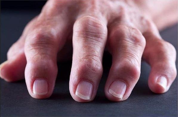Болит кисть руки при ревматоидном артрите