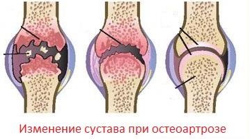 Заболевание остеоартроз изменение сустава