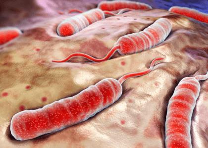 Заболевание холерой
